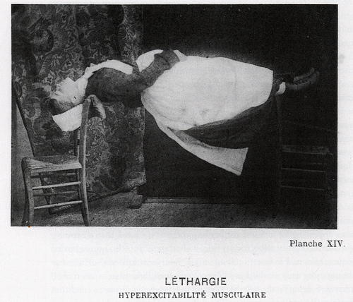 charcot-master-mystery-tour-vintage-medical-photography-hysteric