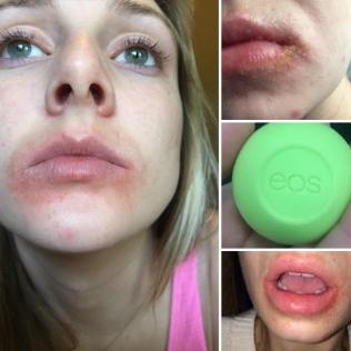 Alleged EOS lip balm reaction